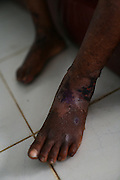 The feet of Abubakar Barrie, 8, a severely malnourished child, at the therapeutic feeding center of the Magbenthe hospital in Makeni, Sierra Leone on Thursday February 26, 2009. UNICEF sponsored some of the construction of the hospital facilities, and also provides high-protein biscuits and milk as part of a joint effort with the World Food Programme..