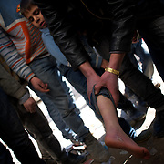 January 20, 2012 - Idleb, Syria: A Syrian man shows a bullet wound, inflicted by Syrian Army snipper, in the leg of his 10 year hold son. The child was unexpectedly shot while crossing a road in  central Taftanaz.