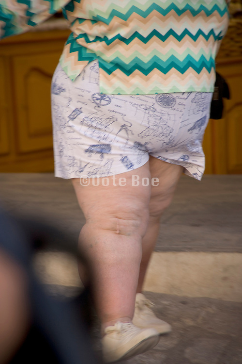 an extremely obese woman walking