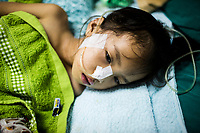 Namfon, aged 6, suffers from Japanese Encephalitis at a hospital in Vientiane, Laos.