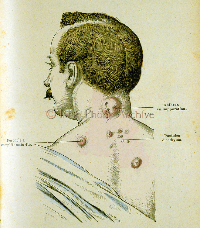 Development of pustules in a man suffering from Anthrax, a disease which could be c ontracted from contact with infected farm animals. The anthrax bacillus was the first bacterium to be identified (1841) and in 1881 Louis Pasteur successfully tested a vaccine on sheep. Engraving c1895.