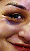 During her first meet a female wrestler is proud to show off her new shiner, a badge of honor amongst her male teammates.
