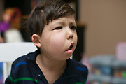 Victor Padilla, 3, in Rochester, New York on Monday, March 6, 2017. Victor has CLOVES Syndrome, a rare overgrowth syndrome diagnosed in only 200 people worldwide.