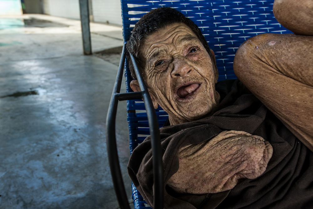 BARQUISIMETO, VENEZUELA - JULY 29, 2016: Zoraida Vizcaya, a patient diagnosed with organic psychosis and mental retardation, cries for hours a day from her chair on the patio of the women's ward.  She was abandoned by her family, and left at the front door of the hospital.  Before she came to El Pampero, she was taken to the central hospital of the city of Barquisimeto, where they restrained her right arm so tight, it had to be amputated.  She is missing three of the six medicines she needs, because of shortages, and also needs adult diapers, but there are none of those either, so she is left without pants on all day and relieves herself in her chair.  The economic crisis that has left Venezuela with little hard currency has also severely affected its public health system, crippling hospitals like El Pampero Psychiatric Hospital by leaving it without the resources it needs to take care of patients living there, the majority of whom have been abandoned by their families and rely completely on the state to meet their basic needs, and who could live much more fulfilling lives if they had the medicines that they need. The hospital does not even have basic hygiene or cleaning supplies.  There is no soap, no shampoo, no tooth paste, no toilet paper.  Patients relieve themselves in the common areas and patio area, and clean themselves only with water. Nearly every patient is infected with scabies because they do not have the resources to bathe properly or to have their threadbare, misfitted clothes washed as often as needed. To make matters worse, the hospital only has running water a few hours a day.  PHOTO: Meridith Kohut for The New York Times
