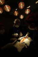 SAO PAULO, SP, BRASIL - 21/10/09:  Equipe do Professor Doutor Luiz Alberto Oliveira Dallan (cardiologista) realiza uma cirurgia de revascularizacao do miocardio (ponte de mamaria), no Instituto do Coracao, em Sao Paulo.   (foto: Caio Guatelli)