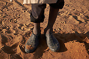 The feet of Adam Alouso, 13 years old as he pauses from digging a hole in the sand for a shelter at a camp of displaced people in the neighbourhood of Chateau, Diffa, Niger on February 12, 2016. They come from a village in Bosso commune, Nigeria and arrived with their parents by foot which took 8 days. The camp is mixed between displaced people from Niger, Nigeria and Chad. They have fled attacks by the militant group Boko Haram on their villages and it's ongoing conflicts with the armies of each country. Caritas undertook a distribution of mosquito nets, cooking pots, sleeping covers, hygiene kits, clothes and cash transfers to the displaced. 228 households received support from Caritas among an estimated 1500 households in the  vicinity of Chateau. There is still great need. There is no school system in place for the children and the housing is not adequate for many as more people arrive each day escaping hostilities. <br /> <br />  'We were scared of being attacked so left. The majority of the village left because we were scared Boko Haram would come in the night and take us away.'