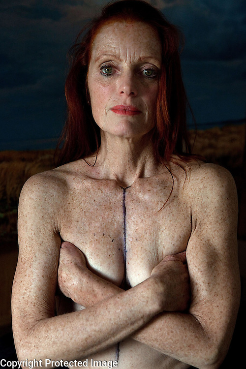 Artist, Coco Larrain, is photographed the day before having a mastectomy and reconstructive surgery at her home in Brewster, MA. Before her current diagnosis, she was treated for breast cancer 15 years ago.  About 1 in 8 women will develop invasive breast cancer over the course of her lifetime.