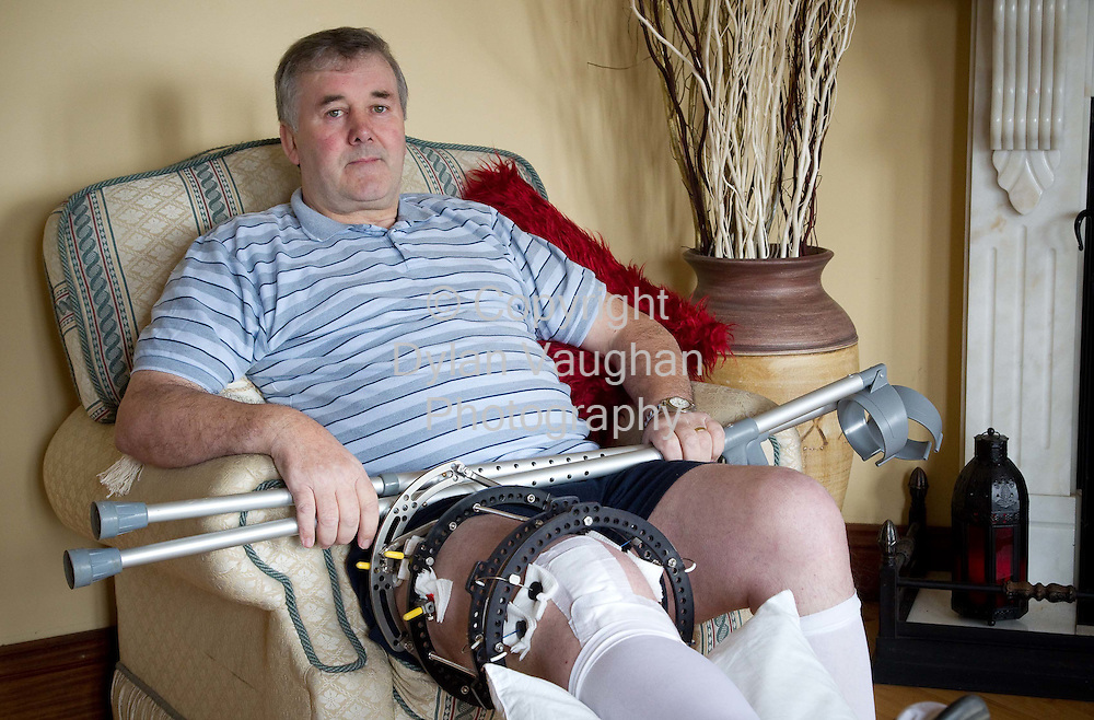 12/2/2010.Noel Burke pictured with his injured leg at his home near Abbeyleix County Laois..Picture Dylan Vaughan..