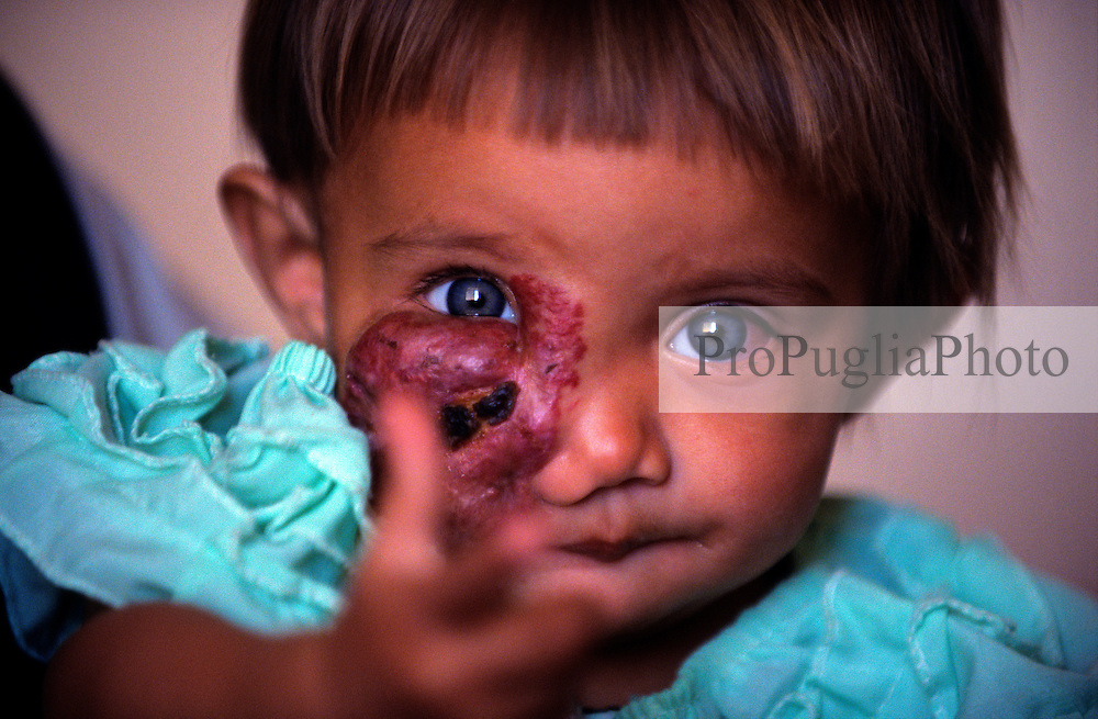 KABUL 06 August 2005..Shabana poiting her finger to the camera....Shabana, a nine-months old Afghan girl, was originally diagnosed with 'Leishmaniasis' a parasitic disease spread by the bite of infected sand flies; then with 'Hemangioma' a tumor made-up of dilated blood vessels that usually appears shortly after birth; and finally with 'Neurofibroma'  a tumor or growth located along a nerve or nervous tissue [....]