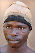 Benin, Natitingou November 30, 2006 - Man with tribal scarification on his face. Scarification is used as a form of initiation into adulthood, beauty and a sign of a village, tribe, and clan.