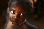 Girl at the Magbenthe hospital in Makeni, Sierra Leone on Thursday February 26, 2009. UNICEF sponsored some of the construction of the hospital facilities, and also provides high-protein biscuits and milk as part of a joint effort with the World Food Programme.