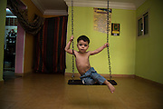 Egypt / Syrian Refugees/ Helwan/ Syrian refugee Mohamed  Mahmoud Khatib, age 3, plays on a swing set hung inside his family's sparsely furnished rental apartment August 05,  2014 in Helwan, Egypt. Mohamed lives with his mother Seham Samy, age 40, his father Mamhmoud and his sister Shefa'a, age 11. Mohamed has the scars from burns on his chest and arm (visible in photo) that he suffered as a result of an accident with boiling water after a nearby explosion frightened him , causing him to run in panic. The homemade swing set is his only entertainment, as his mother keeps the children inside always for their protection, and a lack of any parks in the area. Most Syrian families are fearful of letting their children to go outside in their neighborhood for fear of harassment or crime. Also, local schools are often filled and there is no spaces for Syrian children, so many children, like Mohamed cannot attend.    / UNHCR / Scott Nelson / August 2014.