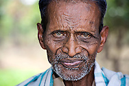 Leprosy Patient, Karagiri, India