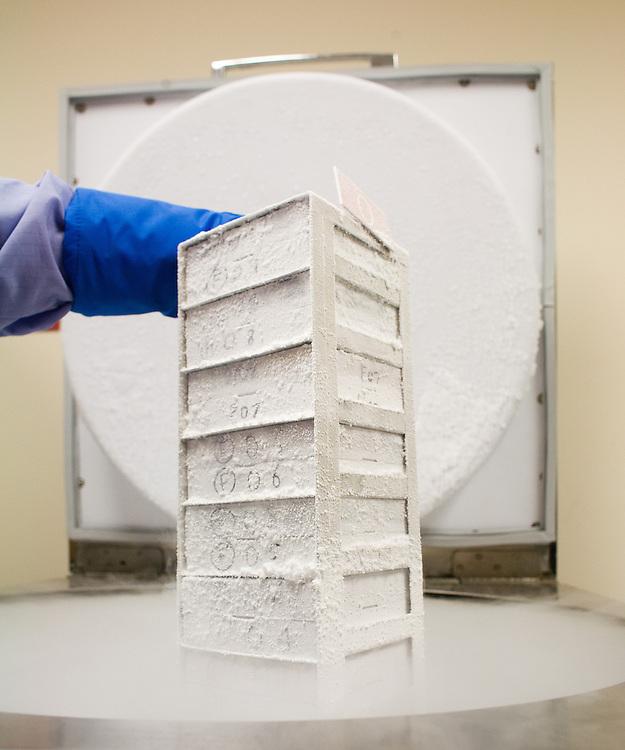Tissue samples in a sheath.