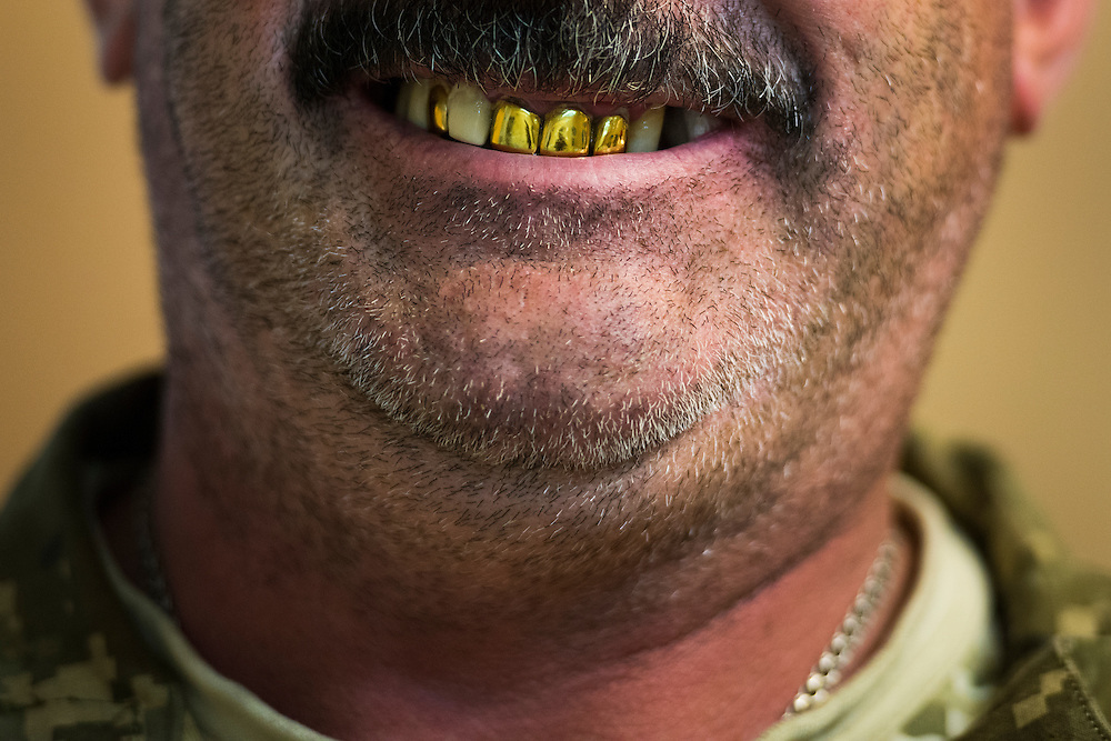 A soldier displays his gold teeth following his appointment at the Ukrop Dental clinic on September 20, 2016 in Karlivka, Ukraine about 12km from the front line.