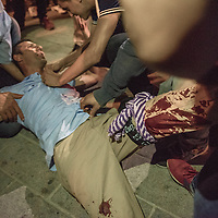 A AKP supporter was shot by Turkish military