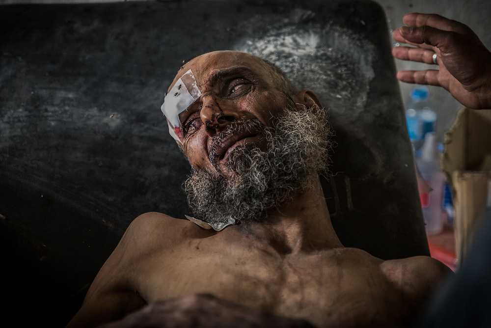 A severely malnourished man receives emergency treatment at a makeshift field clinic a kilometre from the frontline after escaping the ISIS-controlled Old City of Mosul.