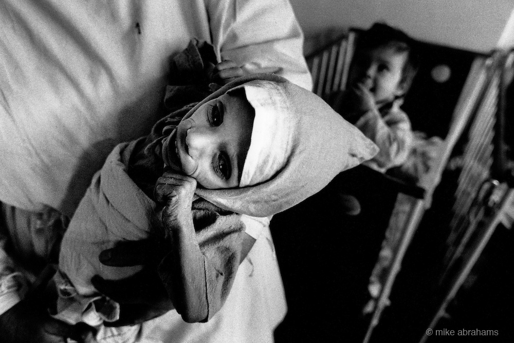 Baby suffering from AIDS at Bucharest hospital. As a result of the lack of mothers' milk due to malnutrition babies were fed intravenously with the necessary nutrients. Scores of children received the same daily injections with a shared needle. Similarly blood transfusions were also given without adequate sterilaisation. Romaia, February 1990