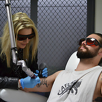 Peninsula Tattoo Removal