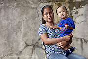 Franz Vyel Pertubal, Male, 10 months old, UCL, Before.<br /> Isabel United Doctor Medical Centre. Operation Smile's 2015 mission to Cauayan city. Philippines. 14th -21st February 2015.<br /> <br /> (Operation Smile Photo - Zute Lightfoot)