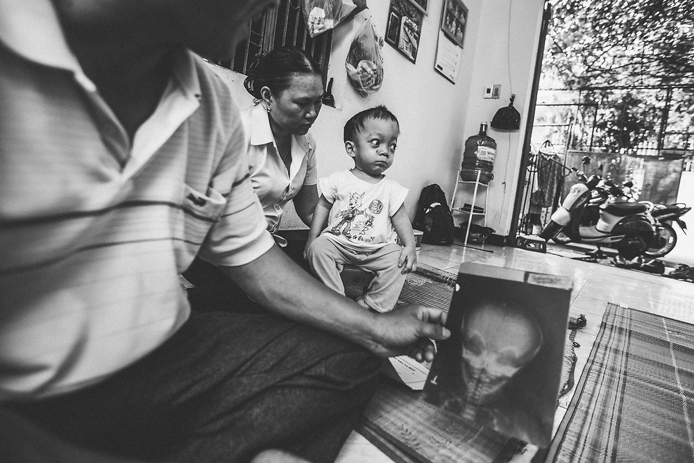 Nguyen Van Dung, 42, inspects x-rays of his youngest son's bones in Danang, Vietnam, on August 8, 2012, with his wife, Luu Thi Thu, and son, Van Dung Tuan Tu, in the background. Dung has worked at the Danang airport since 1997, and ate fish caught in dioxin-contaminated ponds on the airport grounds for many years with his family. Since his tenure at the airport, Dung and his wife have had two children born with physical deformities.