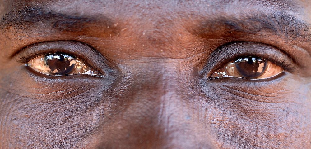 Benin, Natitingou November 29, 2006 - Man with tribal scarification on his face. Scarification is used as a form of initiation into adulthood, beauty and a sign of a village, tribe, and clan.
