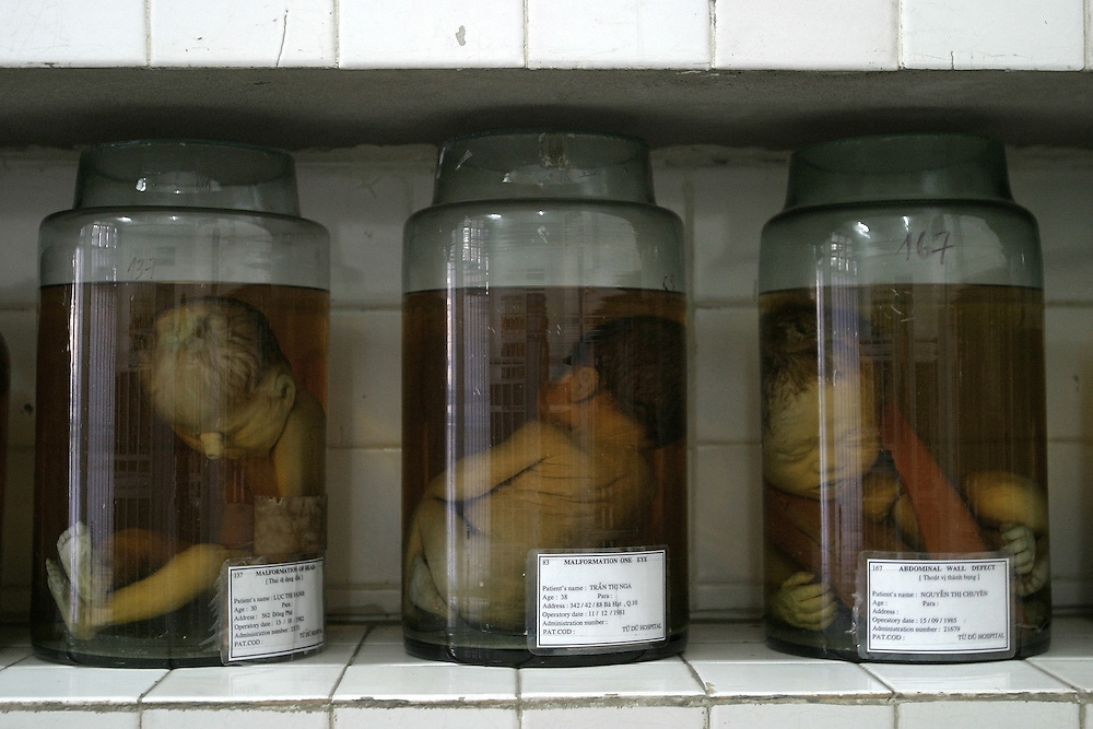 Babies stillborn with deformities suspected from Agent Orange sit in jars of formaldehyde at Tu Do (Freedom) Obstetrics and Gynaecology Hospital in Ho Chi Minh City, Vietnam. Although no link has ever been proven between Agent Orange and any illness, there are consistently high rates of cancer and congenital birth defects in areas heavily sprayed by the defoliant during the war. In 1985, a settlement of $180 million was agreed between the chemical companies that produced the dioxin and US veterans who had developed diseases linked to Agent Orange exposure. Vietnamese veterans and citizens have never recieved such a settlement. ..