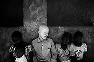 NAMPULA, MOZAMBIQUE - OCTOBER 5, 2016:<br /> Ricardo Carlitos, Nampula, 23 years old, is primary teacher and father, he says that albinos are being hunted like animals and feels bad about being discriminated against for being an albino. It is proud to be albino but lives in fear because of the current situation and for the many cases of Mozambique have happened in Nampula. Besides that, Elidia Carlitos, sister of Ricardo, on September 7 2015 was also a victim of kidnapping and murder. It turned out to be raped, kidnapped and killed by three kidnappers. Either Ricardo and Mauricio, her brothers, although one of the abductors has been caught with the part of the bone after three days, think that those who planned the attack was coined himself, the husband of elidia, who at the time of the abduction he was not in home and his family bought a new car.