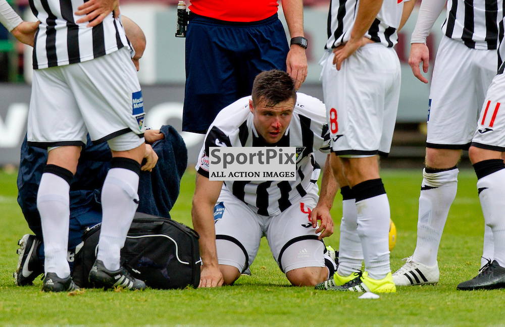 Dunfermline Athletic v Ayr United SPFL League One Season 2015/16 East End Park 12 September 2015<br /> Callum Fordyce with a face knock<br /> CRAIG BROWN | sportPix.org.uk