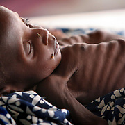 August 4, 2005 - Maradi, Niger - Maman Sani Abdou, 13 months, is suffering from severe malnutrition and is being treated in the intensive care unit at the MSF feeding center. His mother tried traditional medicine and spent all of her savings before bringing him to the MSF center 8/4/05. Photo by Evelyn Hockstein/Polaris
