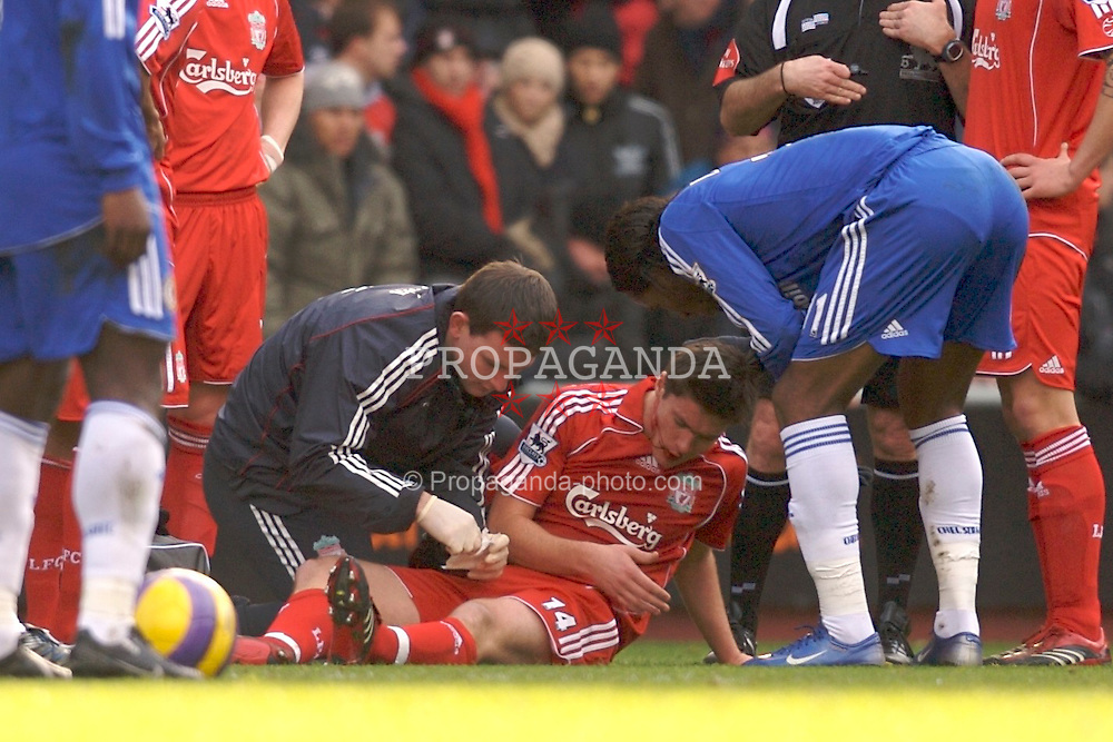 Liverpool, England - Saturday, January 20, 2007: Injured Liverpool's Xabi Alonso is covered in blood during the Premier League match against Chelsea at Anfield. (Pic by David Rawcliffe/Propaganda)