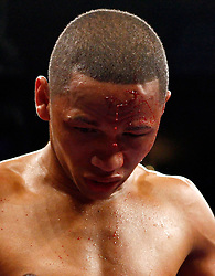 June 13, 2009; New York, NY, USA;  WBO Jr. Flyweight Champion Ivan Calderon suffers a cut during his fight against challenger Rodel Mayol at Madison Square Garden. The fight ended in a draw after a clash of heads caused the fight to be stopped in the fifth round.  Mandatory Credit: Ed Mulholland