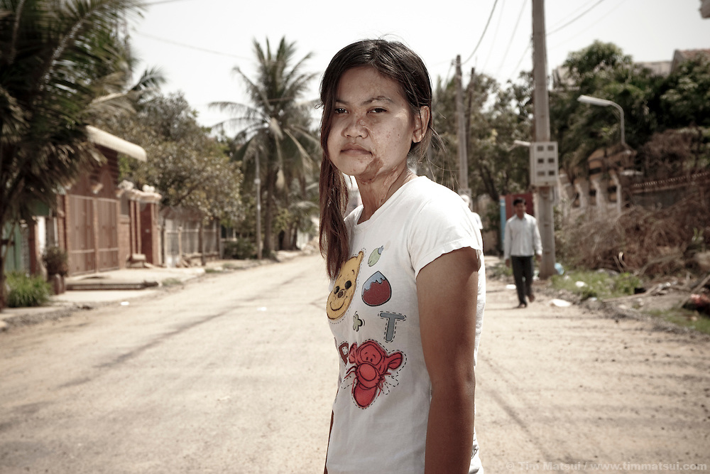 Survivor of acid attack outside the Cambodian Acid Survivor Center where they work in Phnom Penh, Cambodia. Acid attack is a prevalent, and not illegal, act often committed in moments of marital jealousy or business competition. Acid is readily available and creates horrific and disabling burns if it doesn't kill the victim.