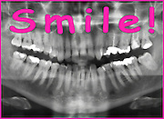 Famous quotes series: Panoramic Dental X-ray with a smile