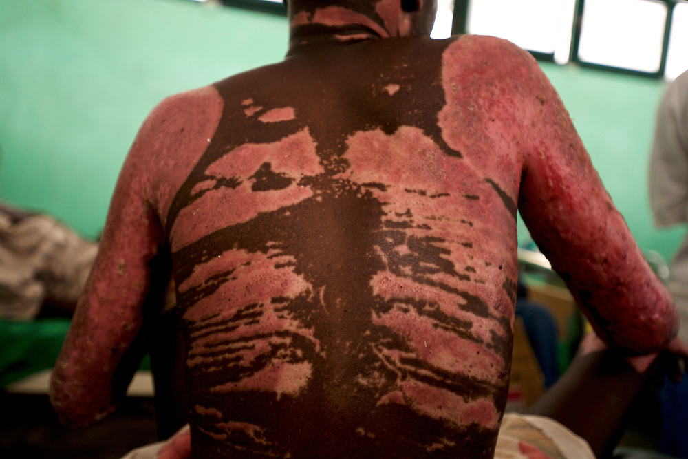 Detail view of the burned back of a Sudan People's Liberation Movement (SPLA-N) rebel soldier being treated at an hospital in Gidel village. The fighter was severely wounded as a result of a bomb dropped by the Sudanese airforce in the rebel-held territory of the Nuba Mountains in South Kordofan.