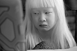 Lotus Hoben get frustrated during her first homeschool class while social distancing during the coronavirus pandemic in the Hudson Valley, New York. Forest and Lotus Hoben, ages 10 and 6, were adopted from China and have albinism, a rare group of genetic disorders that cause the skin, hair, or eyes to have little or no color. Albinism is also associated with vision problems. According to the National Organization for Albinism and Hypopigmentation, about 1 in 18,000 to 20,000 people in the United States have a form of albinism.