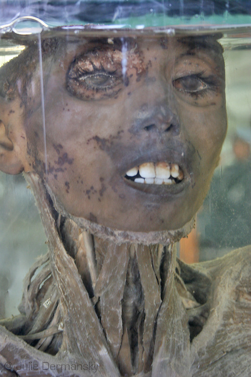 close up of a face on a preserved torso at an anatomy museum in a hospital in Cairo used by medical students studying anatomy
