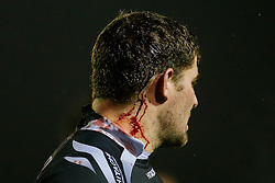 Newcastle Prop Rob Vickers bleeds from his head - Photo mandatory by-line: Rogan Thomson/JMP - 07966 386802 - 21/11/2014 - SPORT - RUGBY UNION - Newcastle upon Tyne, England - Kingston Park - Newcastle Falcons v Gloucester Rugby - Aviva Premiership.