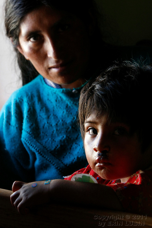 Brigida Tancara Chipana, 3, of Santa Cruz, sits with his mother Tuesday morning, November 13, 2007, the morning after he underwent surgery with Operation Smile at the Hospital Japones in Santa Cruz, Bolivia...Photograph by Erin Lubin.