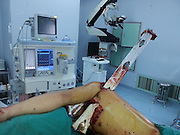ZHUMADIAN, CHINA - SEPTEMBER 15: (CHINA OUT) <br /> <br /> Man Survives After Guard Bar Pierces Through Body<br /> <br />  A man undergoes a surgery at a hospital on September 15, 2014 in Zhumadian, Henan Province of China. The man survived after a car crash. He drove a car and crashed into a fence on a road on Monday morning, and a part of fence pierced through his chest. <br /> ©Exclusivepix