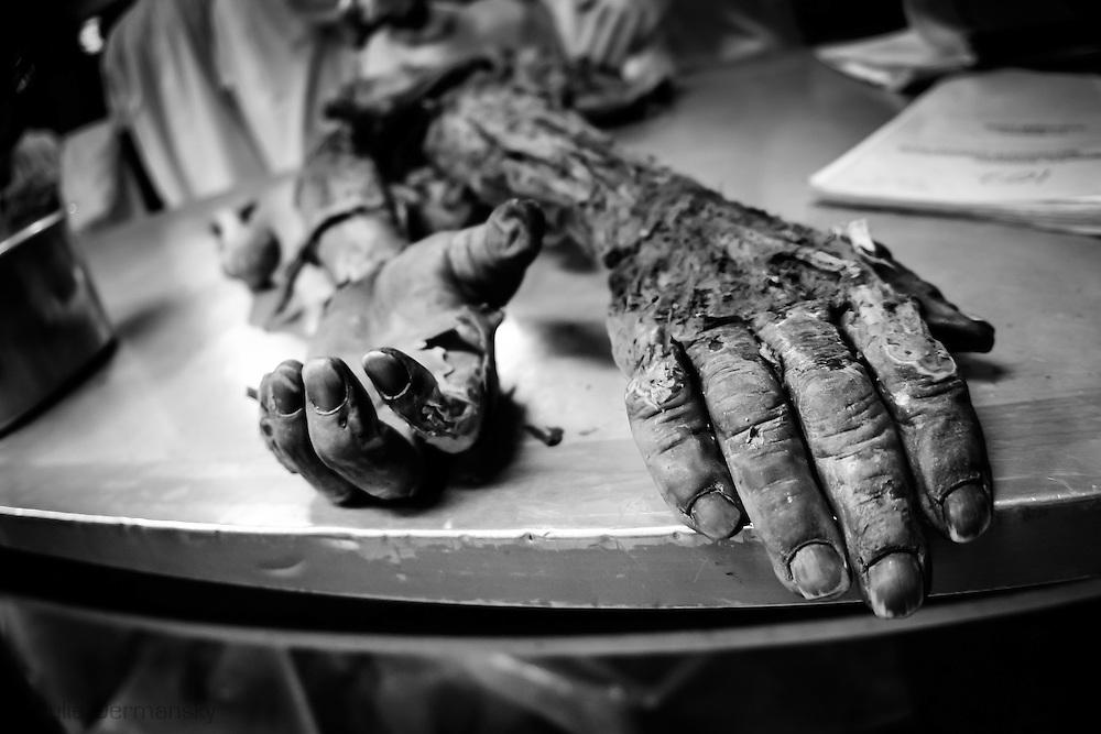 Teaching Hospital Morgue in Nairobi Kenya