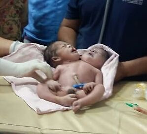 """EXCLUSIVE: A 21-year-old woman delivered a baby with two heads and three hands, sending doctors of the state-run facility into a tizzy in central India. Babita Ahirwar, a resident of Basauda village in Vidisha district of Madhya Pradesh, delivered the baby around 7:30 am on November 23 through C-section. Babita was married to Jaswant Ahirwar around one and a half years ago. The couple which was eagerly waiting to welcome their first baby was devastated after seeing the infant born with a deformity. """"It was a mixed feeling when the nurses handed over the baby to me. Initially, I thought it was a twin, but when the nurses removed the towel, I was shocked to see our firstborn with two heads and three hands. All we wanted was a normal and healthy baby, but the almighty wanted to punish us this way. I don't know why,"""" said new mom Babita told Newslions. Dr Surendra Sonkar of Vidisha Sadar hospital said: """"On Saturday morning around 7:30 am, we facilitated the delivery of a baby through C-section. The baby had two heads and three hands. The third hand had two palms attached to it. """"There is only one heart visible in the newborn. This is a very rare condition and this is the first time. I have come across such a case in my career,"""" he said. """"We had initially kept the baby in the ICU, but we thought it was better to refer them to a better-equipped facility in Bhopal,"""" he added. At present, the baby is undergoing treatment at Bhopal's Hamidi Medical College and Hospital. 23 Nov 2019 Pictured: Baby born with two heads and three hands in central India. Photo credit: Newslions Media / MEGA TheMegaAgency.com +1 888 505 6342"""