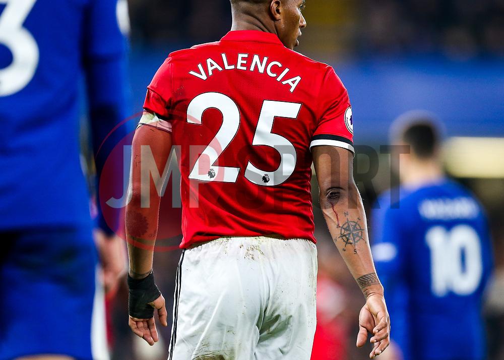 Luis Antonio Valencia of Manchester United bleeds - Rogan/JMP - 05/11/2017 - FOOTBALL - Stamford Bridge - London, England - Chelsea v Manchester United - Premier League.