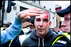 EDL supporter is hurt at the protest against what the EDL sees as the influence of Islam in the Tower Hamlets area of London, United Kingdom. Saturday, 7th September 2013. Picture by Piero Cruciatti / i-Images