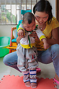 Feng receives daily physical therapy sessions and, despite suffering from cerebral palsy and autism, has been able to stay at home with his parents, who provide around-the-clock support and attention.