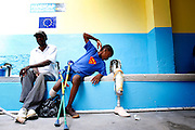 Evens Coriolan, 14, deaf, waits for a leg he can take home today while he waits for a fitted leg. Sitting with his father Roland, 50. The are from Delmas section of Port au Prince. ( David Swanson / Staff Photographer ) Port au Prince, Haiti.  04-12-2010 Reporter is Michael Matza.