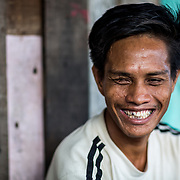 Bajau Laut, Morbi now lives with the consequences of fish bombing. He has lost his right eye, right hand and some of his teeth because of a grenade exploding in his hand