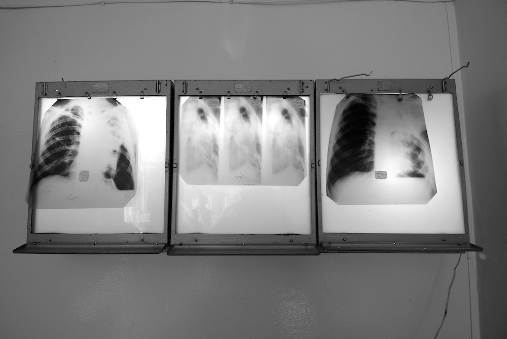 Russia. Tomsk (Siberia). 23.08.2007. TB Hospital. Three different x-rays of a TB patients lungs on a light box.