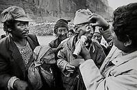 Eye Camp Mustang Nepal 1992. Dr Sanduk Ruit examines the eyes of his patients at his Chhuksang clinic.
