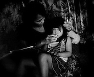 Jelawat No feeds her daughter, Mulyati, food and medicine through a modified hypodermic syringe because Mulyati cannot swallow solid food.  Doctors do not know why.  The Penan family are from the village of Pa Tik, two days walk through the Borneo rainforest from the regional center of Bario.  Ramli, Mulyati's father, moved the family to a Penan settlement on the edge of rainforest next to Bario to be close to the only medical clinic within with a week's walk or an hour's flight because Mulyati would not be able to get any nourishment without her medicine.  Pa Tik I Penan settlement on the edge of the rainforest, Bario, Sarawak, Malaysia.